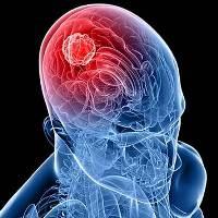 У аллергиков более низкий риск развития опухолей головного мозга