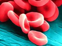 Что такое железодефицитная анемия и как с ней бороться