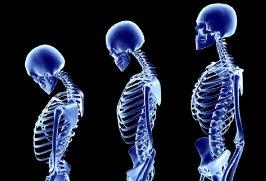 Мифы и факты об остеопорозе