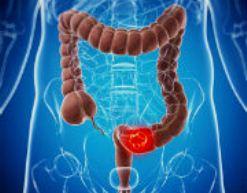 Как предотвратить развитие рака толстой кишки?