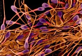 Аномальная морфология сперматозоидов. Что это?