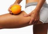 «Апельсиновая» лихорадка, или В крепких объятиях целлюлита
