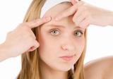 Акне у подростков: страдания невыносимы
