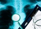 Рекомендації пацієнтам з бронхіальною астмою щодо способу життя та харчування