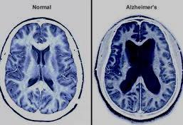 Существует ли связь между болезнями десен и болезнью Альцгеймера?