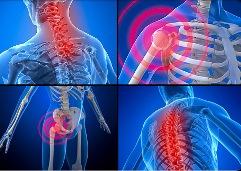 Добавки витамина D уменьшают боль при фибромиалгии