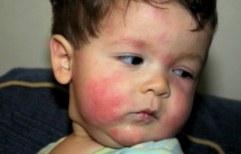 Одни и те же пищевые продукты вызывают разные виды аллергии