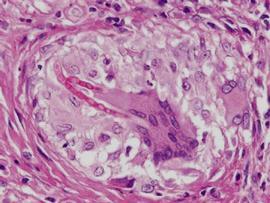 Грибковые инфекции имеют генетическую основу