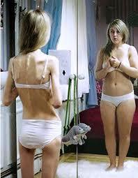 Анорексия. Люди, рожденные весной, чаще подвержены этому заболеванию