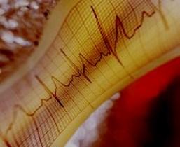 Ранние признаки, указывающие на вероятность внезапной остановки сердца