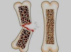 Препарат, предназначенный для лечения остеопороза, поможет лечить рак молочной железы