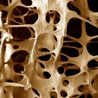 Вторичный остеопороз встречается чаще, чем кажется на первый взгляд