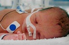 Преждевременное рождение связанно с астмой и одышкой у детей на протяжении всей жизни