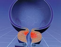 Сосудистое лечение помогает уменьшить некоторые симптомы при доброкачественной гиперплазии предстательной железы