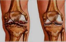 Незначительная потеря веса поможет облегчить боль при артрите коленного сустава