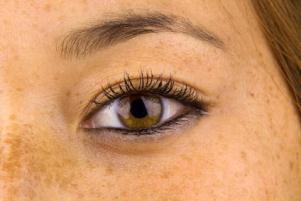 Обнаружен неожиданный фактор, который способствует развитию меланомы у рыжеволосых людей со светлой кожей