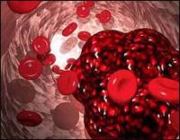 Комбинированные оральные контрацептивы повышают вероятность образования тромбов у женщин с СПКЯ