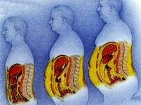 Висцеральный жир связан с раком кишечника
