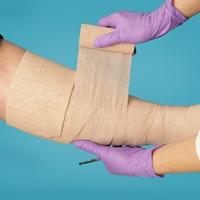 Спрей, содержащий живые клетки кожи, помогает заживлению трофических язв